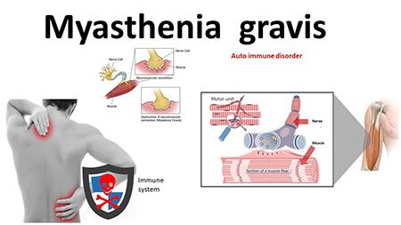 علایم ، علل و درمان بیماری میاستنی گراویس