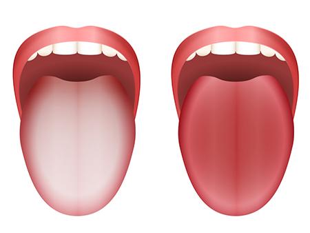 عوامل ایجاد زبان سفید و چگونگی درمان سفیدی زبان