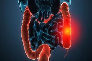 سرطان روده بزرگ و نکتههایی برای پیشگیری