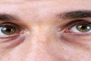 راهکارهای جدید در درمان تیرگی دور چشم