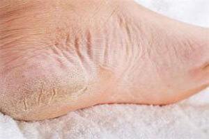 چگونه ترکهای پوستی را درمان کنیم؟
