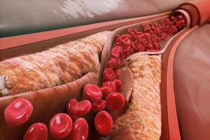 کلسترول و تری گلیسیرید چه فرقی با هم دارند؟