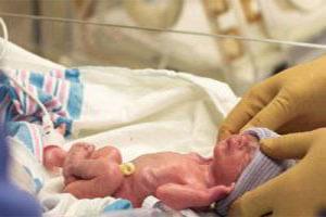 اهمیت تغذیه نوزاد نارس با شیر مادر