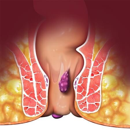 علل ، علایم و درمان بواسیر خارجی (هموروئید خارجی)