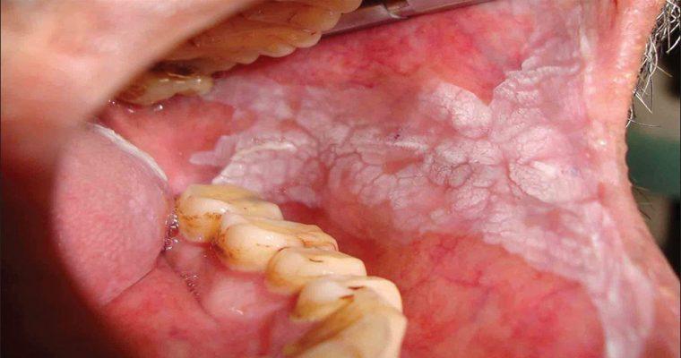بیماری لکوپلاکیا